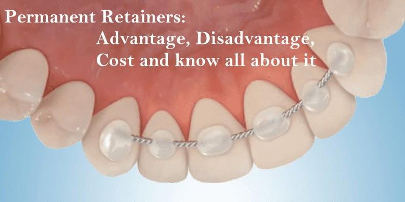 permanent retainers